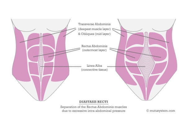 "Illustration of Diastis Recti from <a href=""http://mutusystem.com/diastasis-recti-diagram-the-muscles-involved.html"" target=""_blank"">The MuTu System</a>"